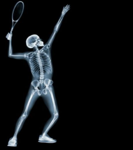 X-Ray Image of A Man Playing Tennis