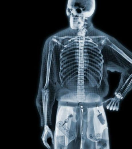 X-Ray Image of A Man