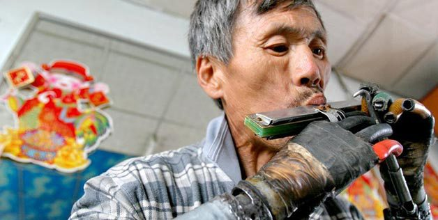 Jifa Sun, Chinese farmer who designed his own prosthesis