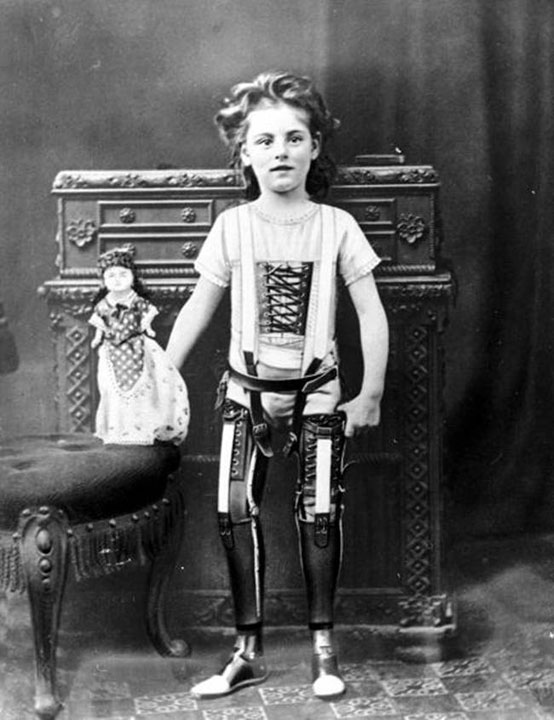 Artificial legs in the UK in 1890