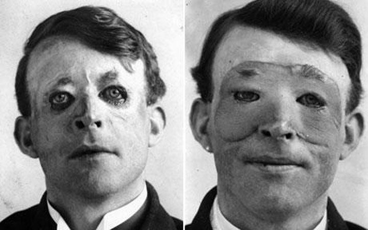 Walter Yeo, one of the first people to have undergone plastic surgery and skin transplantation in 1917