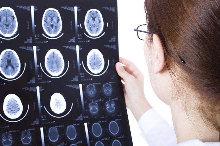 A Revolutionary Brain Implant Reduces The Risk Of Epilepsy Seizures By 38%-1