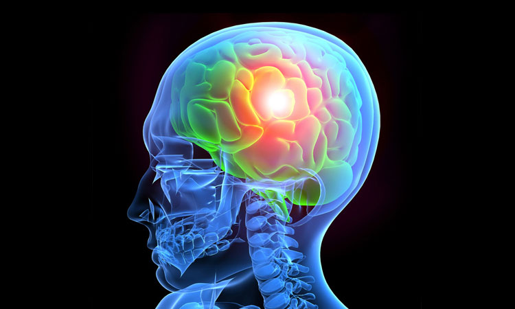 A Revolutionary Brain Implant Reduces The Risk Of Epilepsy Seizures By 38%-2