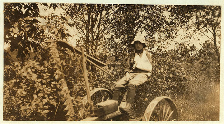 A child Wounded by his own mower-20 Photographs Showing The Child Labor Conditions In Early Twentieth Century-17