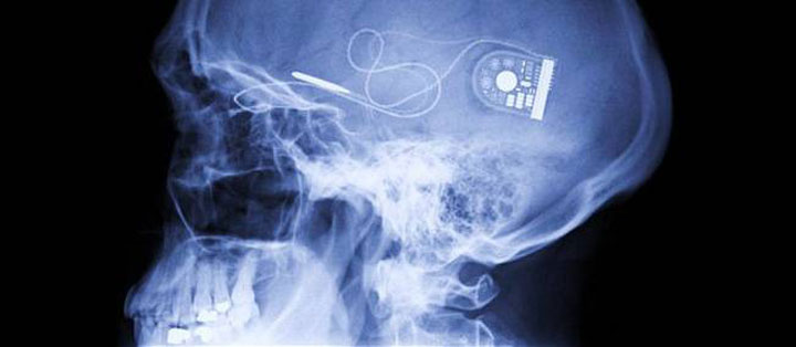 Electronics Implants-10 Technologies That Can Lead To The Slavery Of Human Race-6