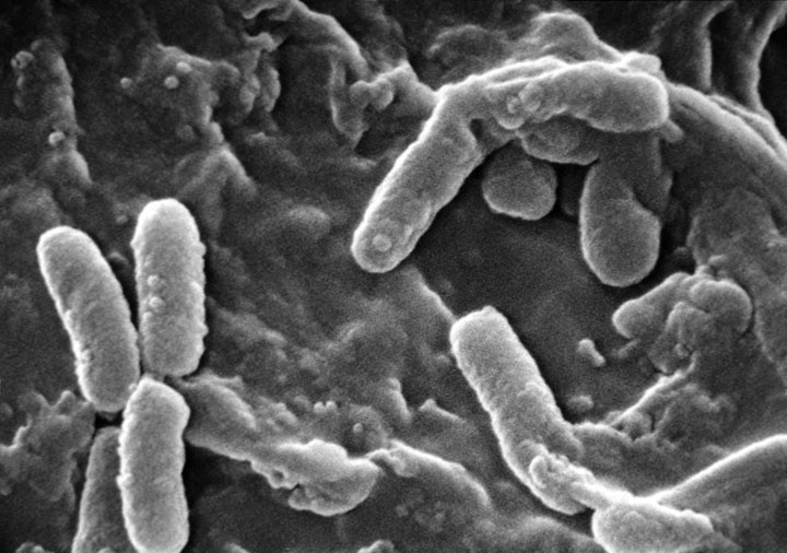 Scientists Have Discovered A Bacteria Species Thats Feeds Upon Electricity-1