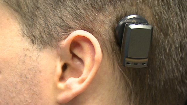 cochlear implant controversy