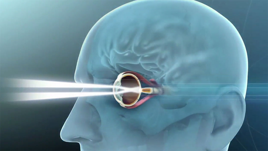 Revolutionary Implant To Restore Sight Of Blind People-4