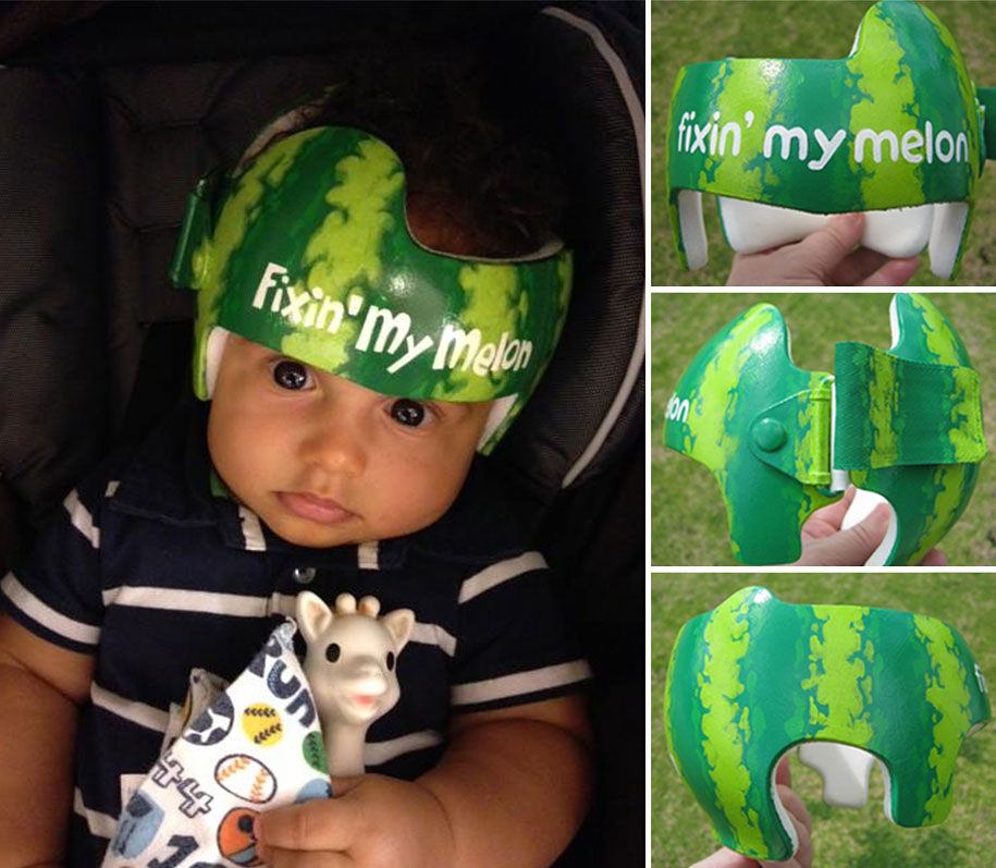 Artist Brings Smiles To Babies By Transforming Their medical Helmets Into Artworks-14