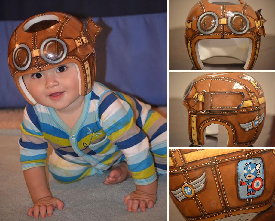 Artist Brings Smiles To Babies By Transforming Their medical Helmets Into Artworks-15