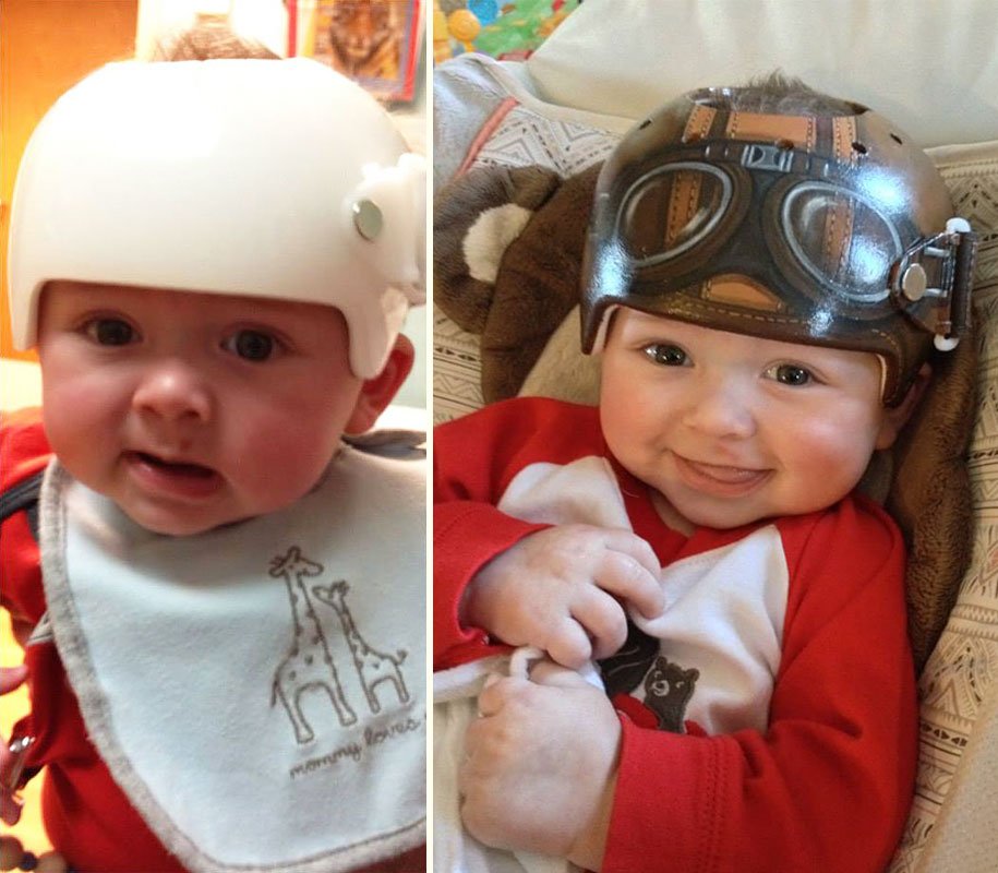Artist Brings Smiles To Babies By Transforming Their medical Helmets Into Artworks-16