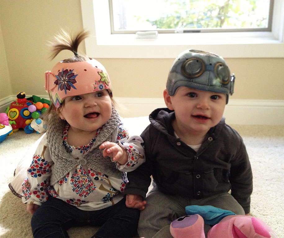 Artist Brings Smiles To Babies By Transforming Their medical Helmets Into Artworks-29