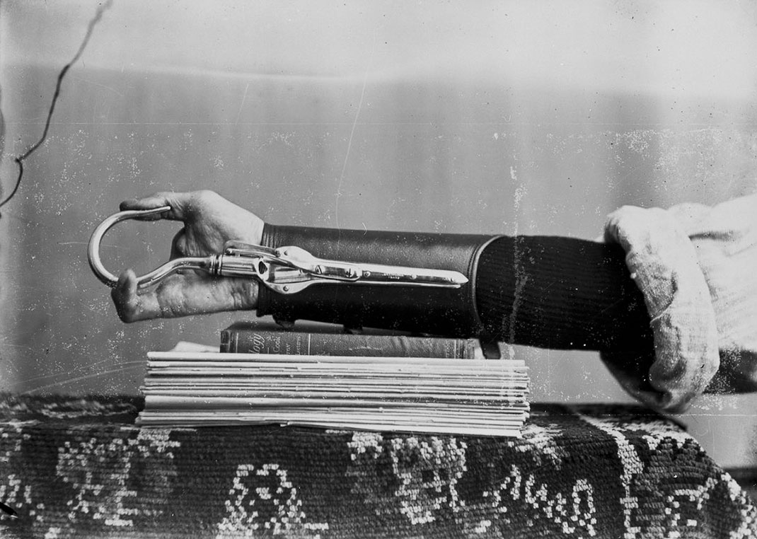 These Ingenious prostheses From 19th century helped 15,000 People Regain Mobility-1
