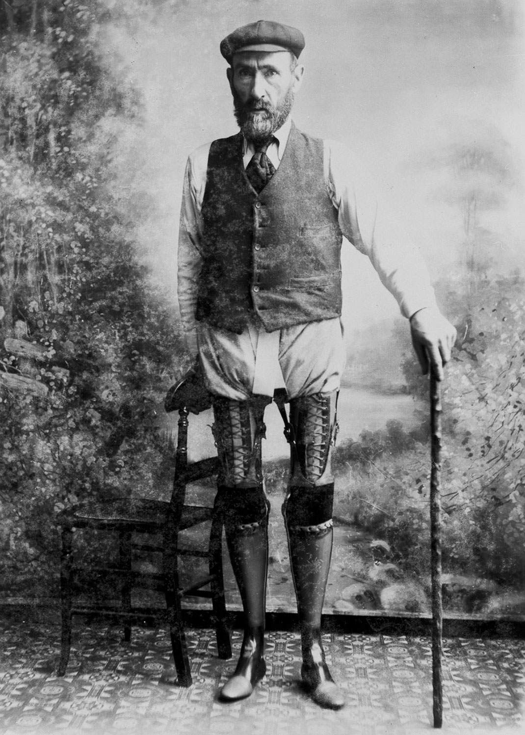 These Ingenious prostheses From 19th century helped 15,000 People Regain Mobility-12