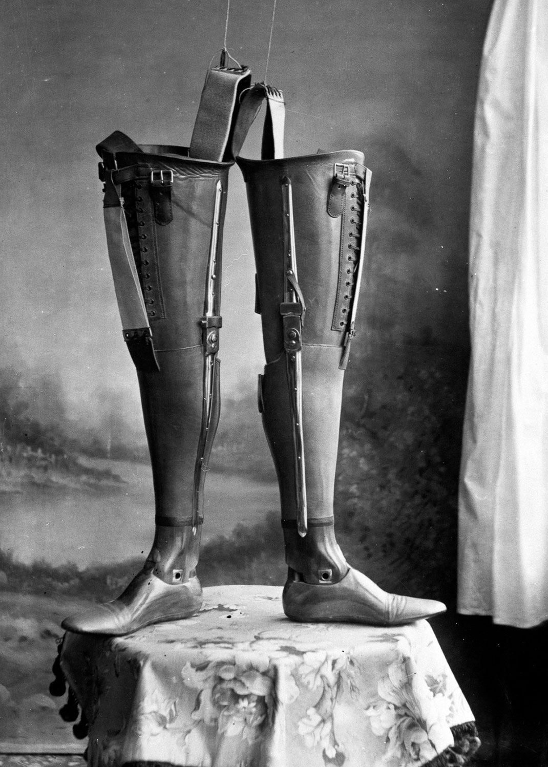 These Ingenious prostheses From 19th century helped 15,000 People Regain Mobility-13