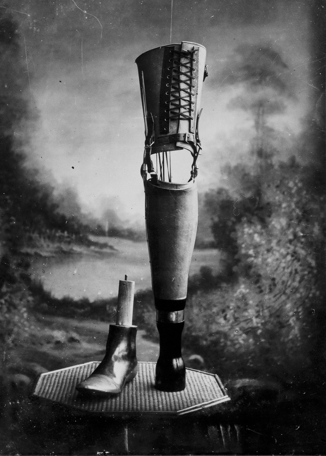These Ingenious prostheses From 19th century helped 15,000 People Regain Mobility-14