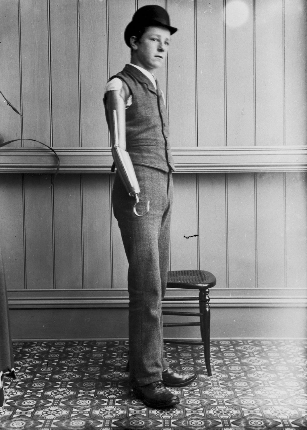 These Ingenious prostheses From 19th century helped 15,000 People Regain Mobility-19