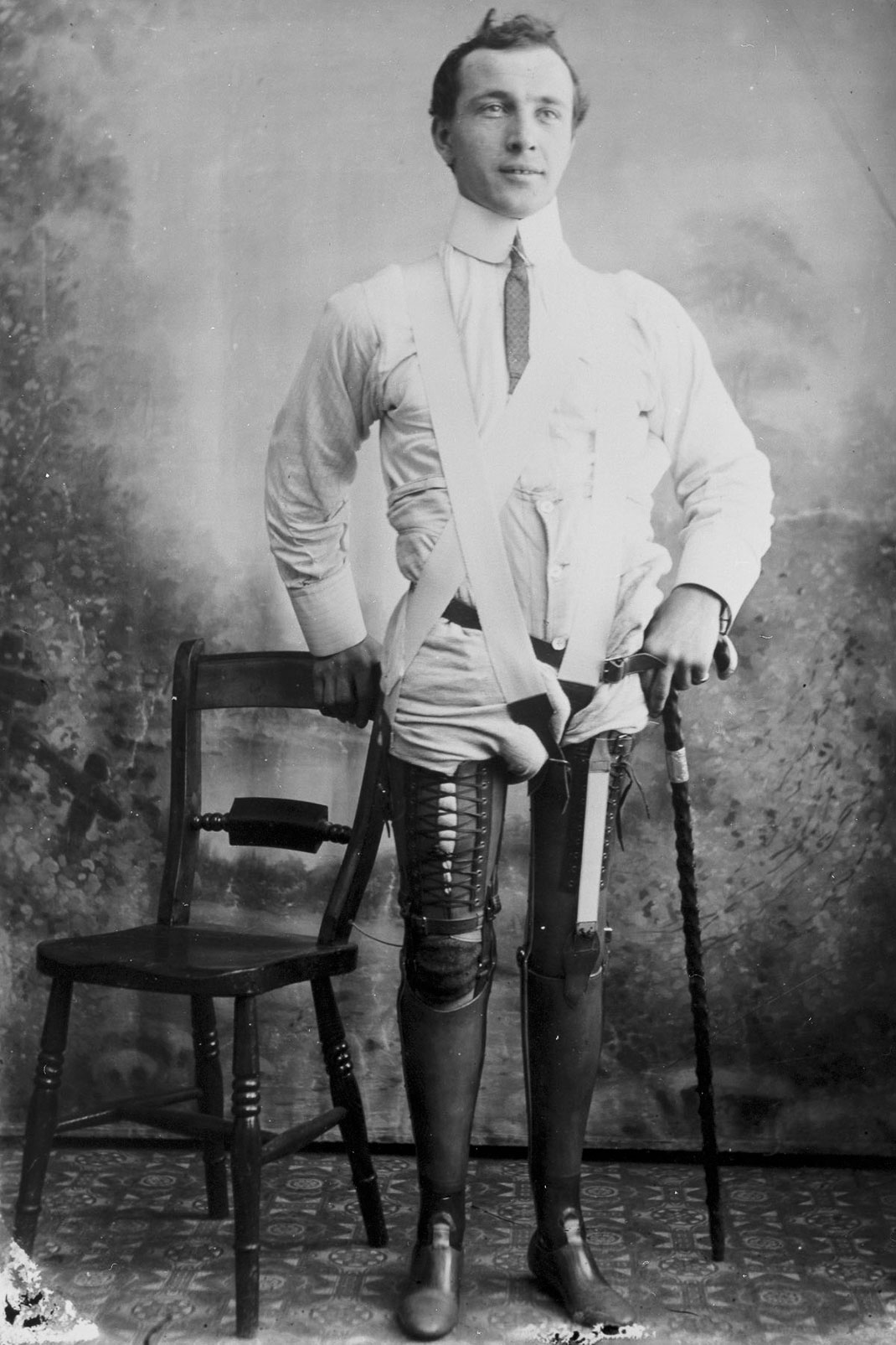 These Ingenious prostheses From 19th century helped 15,000 People Regain Mobility-8