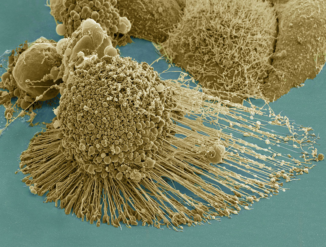 Cancer cells whe viewed from the electron microscope