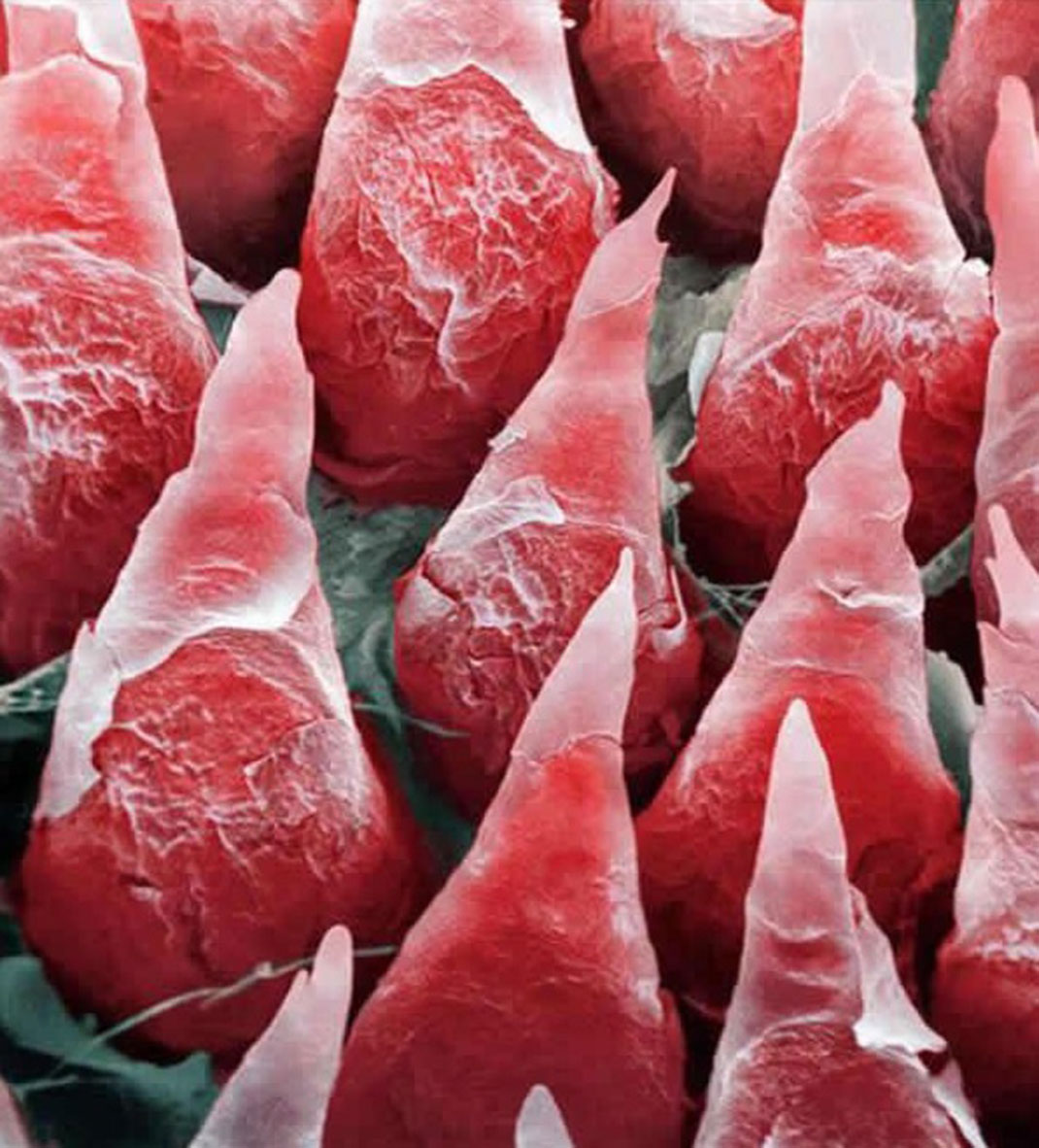 The human tongue seen by a microscope