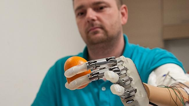 Scientists Develop A Bionic Hand With A Feeling Of Touch-