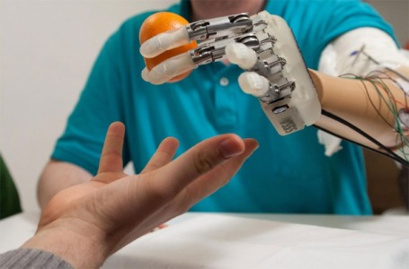 Scientists Develop A Bionic Hand With A Feeling Of Touch-1