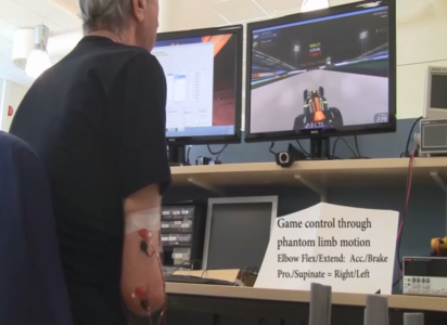 Phantom Limb Pain Relief Using Augmented Reality Techniques-1