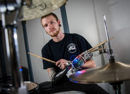 Bionic Drummer Arm: A story that could be related with Def Leppard-2