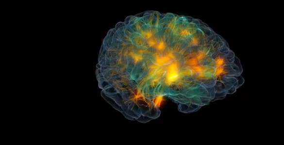 3D modeling of human brain activity-