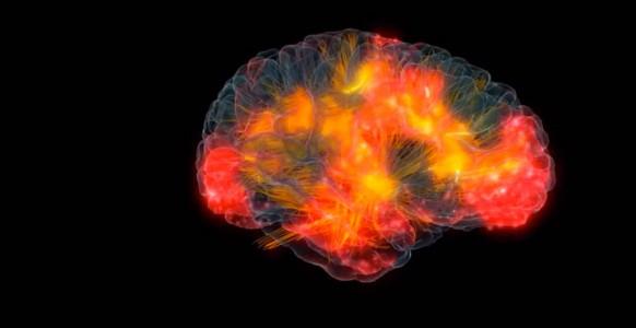 3D modeling of human brain activity-1