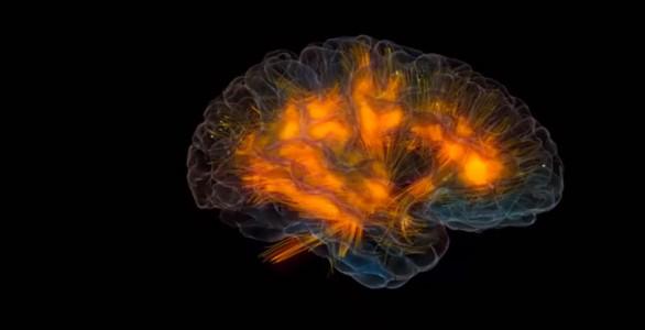 3D modeling of human brain activity-2