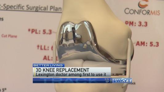 conformis made 3D printed knee