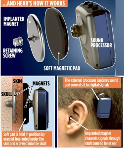 magnetic implant