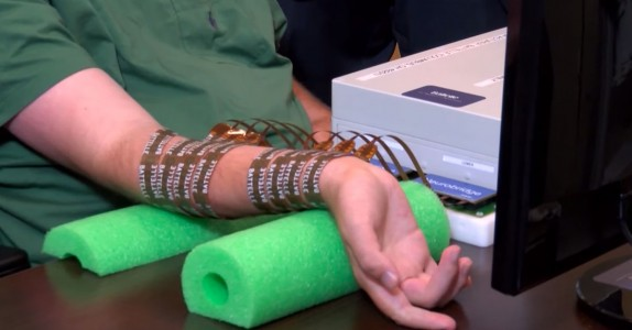 A Microchip Enables A Quadriplegic To Move His Hand For The First Time-1