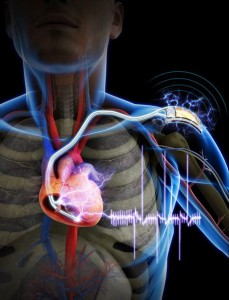 Soon Movements Of Muscles Will Power Heart Pacemakers-