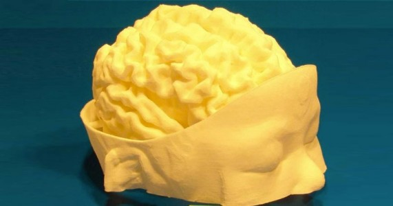 3D Printing Helps Neurosurgeons Perform Life Saving Surgery-2