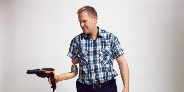 Revolutionary Prosthesic Arm Gives Sensation Of Touch To Amputees-