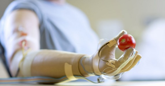 Revolutionary Prosthesic Arm Gives Sensation Of Touch To Amputees-2
