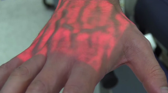 A Revolutionary Device That Relieves Anxiety Of Blood Donation-3