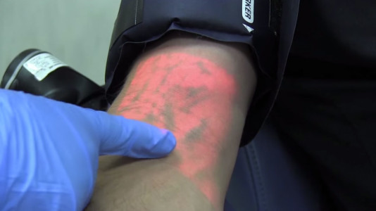 A Revolutionary Device That Relieves Anxiety Of Blood Donation-4