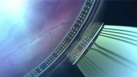 Revolutionary Implant To Restore Sight Of Blind People-1