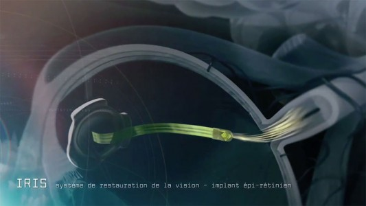 Revolutionary Implant To Restore Sight Of Blind People-5