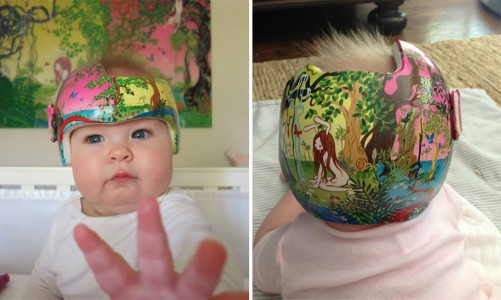 Artist Brings Smiles To Babies By Transforming Their medical Helmets Into Artworks-1