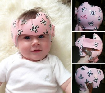 Artist Brings Smiles To Babies By Transforming Their medical Helmets Into Artworks-10