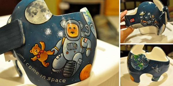 Artist Brings Smiles To Babies By Transforming Their medical Helmets Into Artworks-2