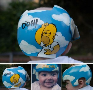 Artist Brings Smiles To Babies By Transforming Their medical Helmets Into Artworks-3