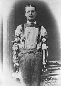 These Ingenious prostheses From 19th century helped 15,000 People Regain Mobility-10