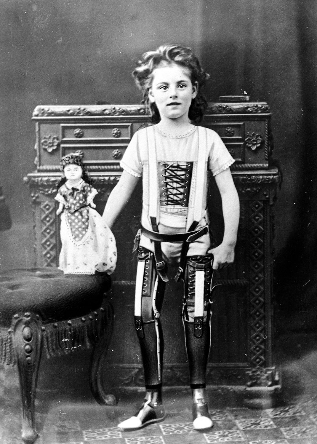These Ingenious prostheses From 19th century helped 15,000 People Regain Mobility-11