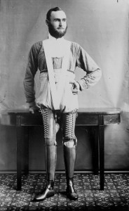 These Ingenious prostheses From 19th century helped 15,000 People Regain Mobility-15