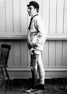 These Ingenious prostheses From 19th century helped 15,000 People Regain Mobility-20